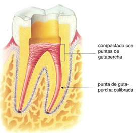 endodoncista realizacion endodoncias por especialistas dentales