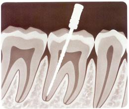 realizacion endodoncias por especialistas dentales